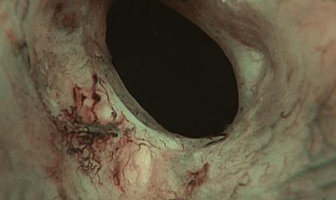 __content_urologe_endoskopie