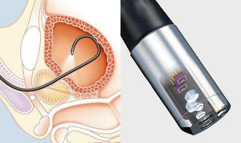 __content_urologie_endoskopie_sensor